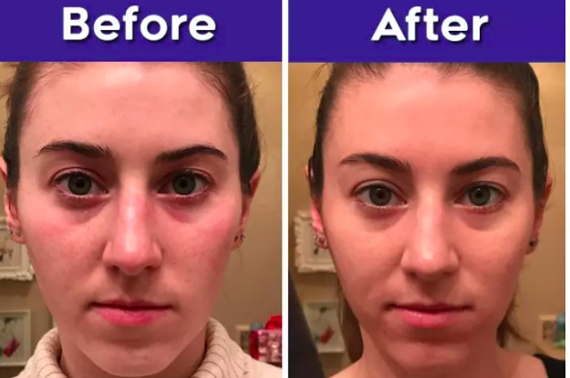 Skin Care Before And After 2