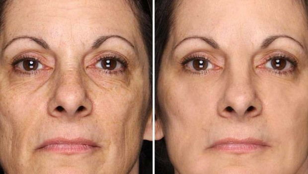 skin care Before And After