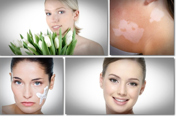 Natural Vitiligo Treatment System Before And After