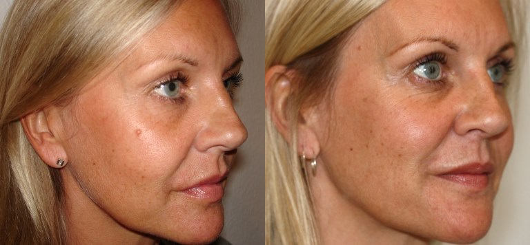 Revitol Skin Tag Removal Benefits
